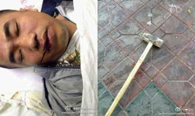 Nhân chứng bị công an đánh bằng búa tạ đến ói máu và đã chết trên đường đến bệnh viện. Nguồn Weibo