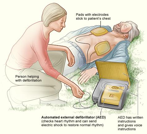 Cách dùng máy máy rung tim tuej động. Nguôn: http://www.nhlbi.nih.gov/